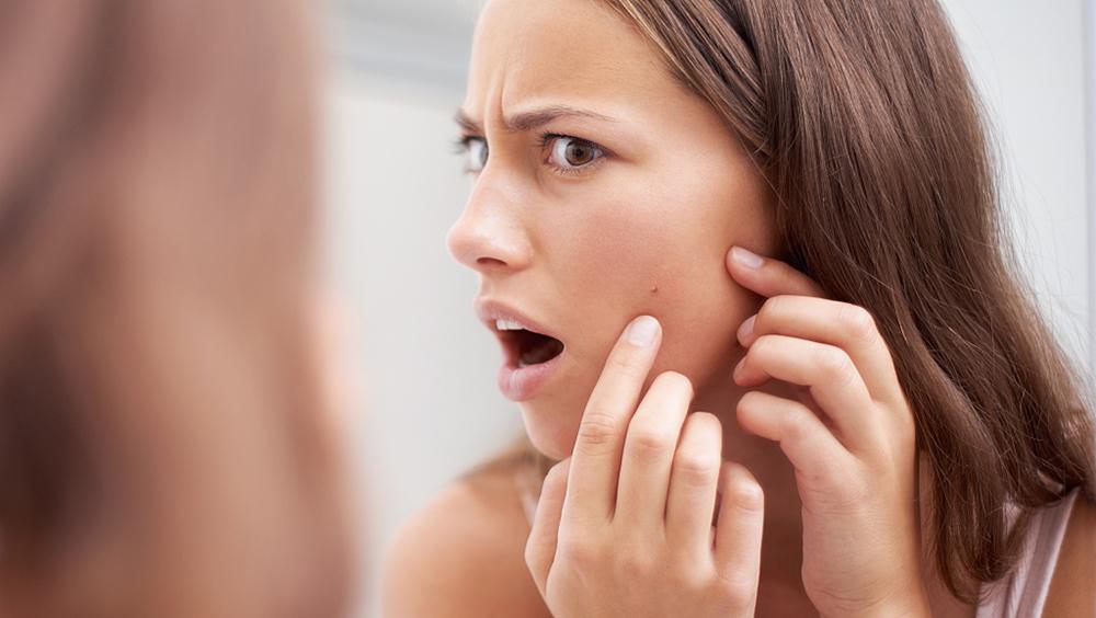 这些夏日肌肤问题都和肌肤出油太多有关