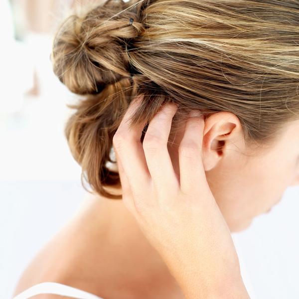 除了换洗发水,有头皮屑的你还有什么别的方法?